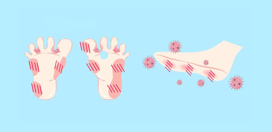 Psoriasis på fødderne