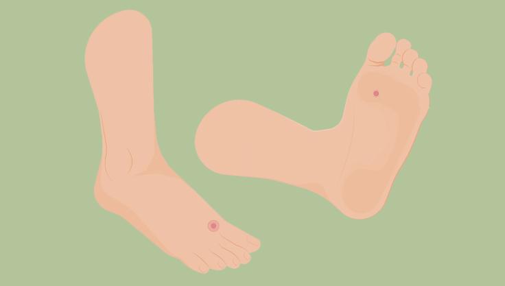 Fire forskellige fodlidelser, og hvordan du behandler dem